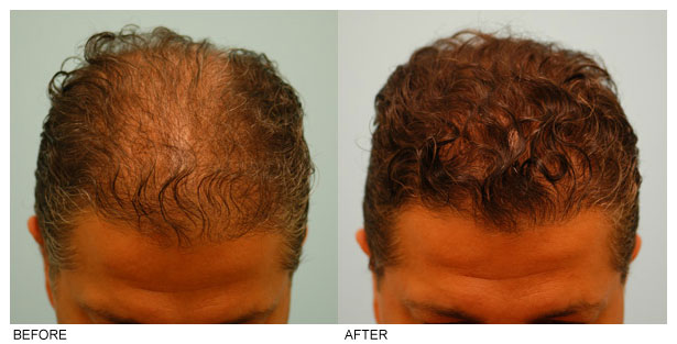 The Mental Benefits Of A Hair Transplant