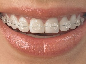 3 Options For Discreet Adult Orthodontic Treatment