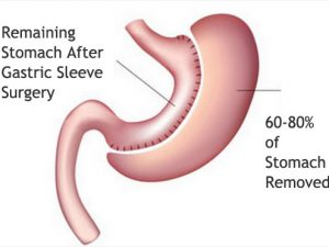 Gastric Bypass And Importance Of Such A Surgery