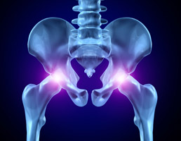 Study Shows That Tissue Damage Is Associated With MoM Implants
