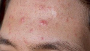 The Ill Cooked Darling: A Fix Pertaining To Acne Breakouts